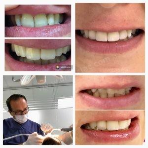 implant kalitesi
